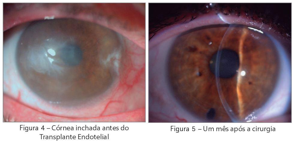 Imagem ilustrativa de uma córnea inchada antes do transplante e um mês após o transplante endotelial