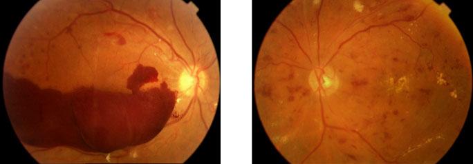 Imagens ilustrativas de retinografias mostrando aspectos do fundo do olho de pacientes com retinopatia diabética
