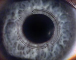 Imagem ilustrativa de uma córnea com anel intracorneais