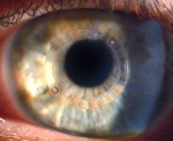 Imagem ilustrativa de um córnea com dois segmentos de anel intracorneal