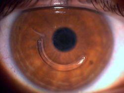 Imagem ilustrativa de um córnea com um segmento de anel intracorneal