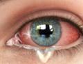 Imagem ilustrativa de um olho com conjuntivite