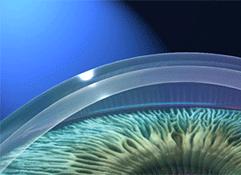 Imagem ilustrativa de um endotélio