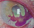 Imagem ilustrativa de uma córnea infectada com micro-organismos